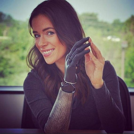 Meet The Beautiful Model With A Bionic Arm